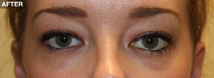 congenital-adult-ptosis-after1