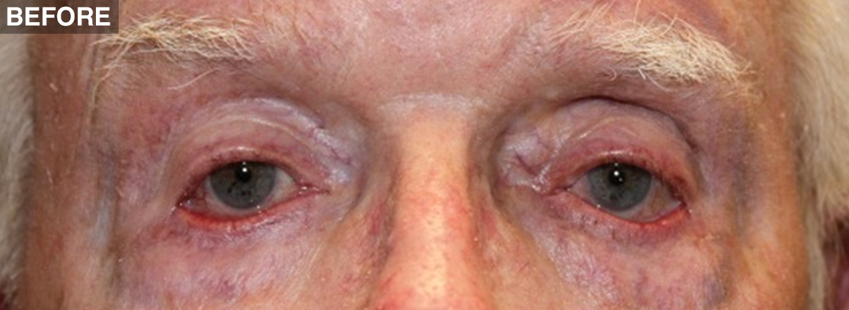 Lower Lid, Mid Face & Cheek Surgeries - Northwest Eyelid ...
