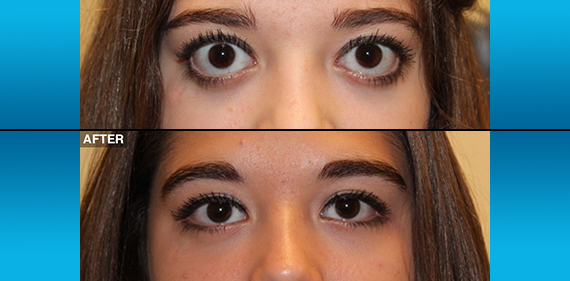 Before After Northwest Eyelid Orbital Specialists Ps Neos